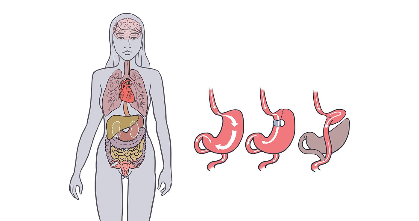 Aurelien-Boudault-illustration-medicale-estomac