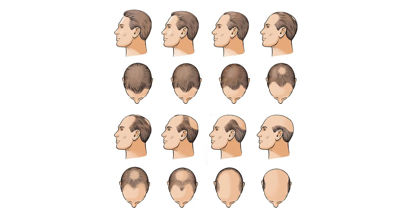fred-van-deelen-vignettes-medicale-cheveux-651